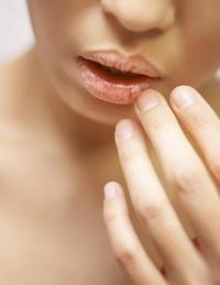 감기 걸리면 유독 입술이 빨간 리유는 뭘까?