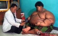 세계 가장 뚱뚱한 10살, 인도네시아 정부 감량 나섰다