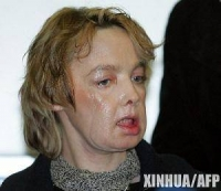 세계 첫 안면이식 프랑스 여성, 11년 만에 사망