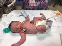 세상에 두번 태여난 아기
