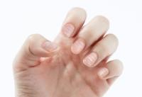 손톱에 생긴 흰가로줄, 아연 결핍 신호